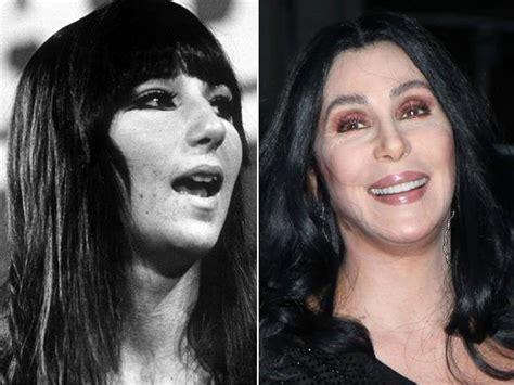 Cher   Sourires ultrabright : vrai ou faux