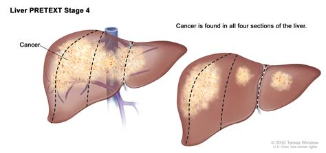 Childhood Liver Cancer Treatment  PDQ    Cure Today