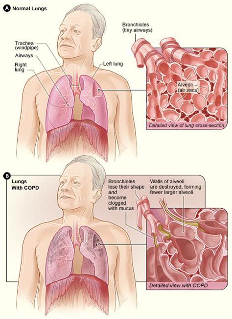 Chronic Obstructive Pulmonary Disease  COPD  | MediMoon