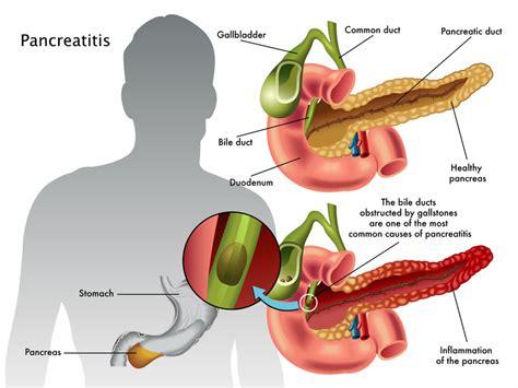 Chronic Pancreatitis   Harvard Health