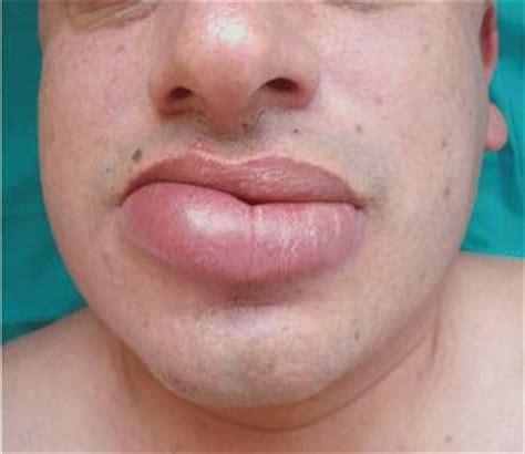Cialis and heartburn/indigestion swollen_lip_xlarge.jpg