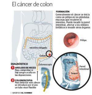 Científicos vascos logran diagnosticar el cáncer de colon ...