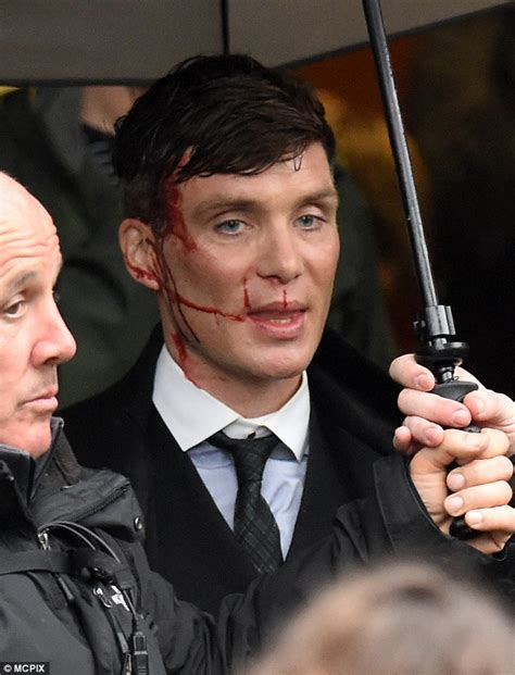 Cillian Murphy sports nasty facial  injury  on the set of ...