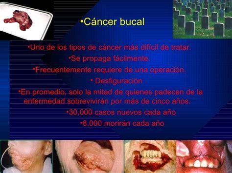 Ciru4 Copia De Cancer Bucal