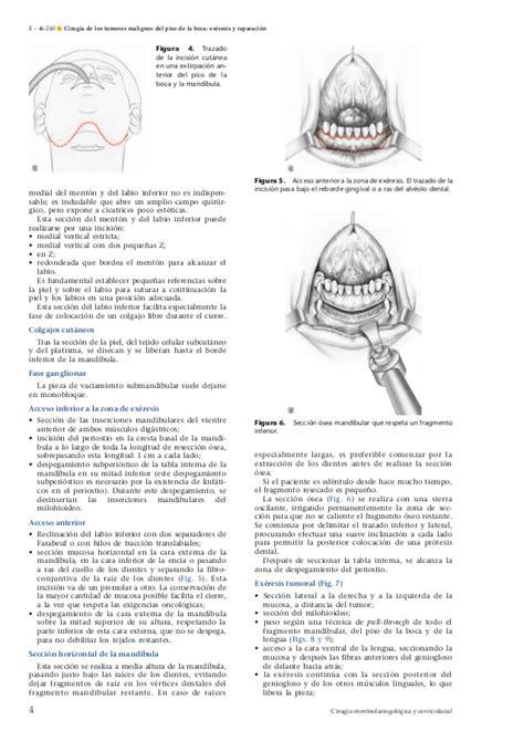 Cirugía de los tumores malignos del piso de la boca