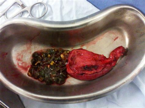 Cirugía de Vesícula Biliar :: Cirugía Laparoscópica