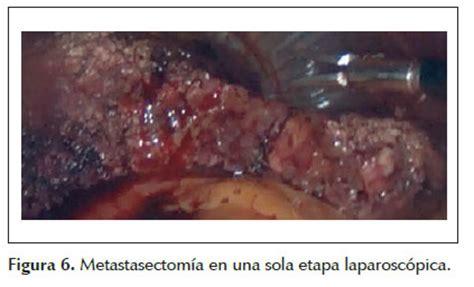 Cirugía laparoscópica en una sola etapa en cáncer de colon ...