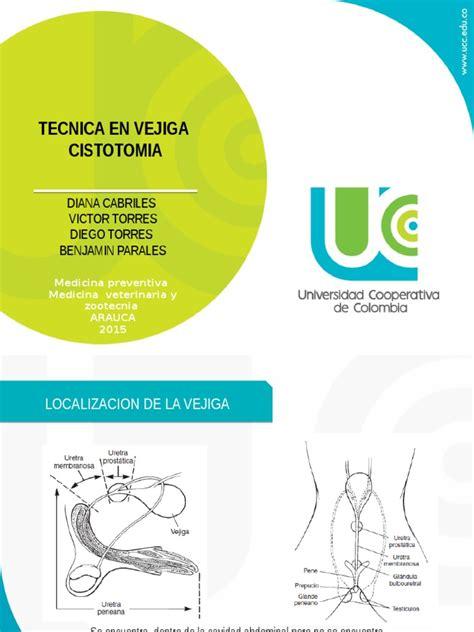 cirugia vejiga | Vejiga urinaria | Biopsia