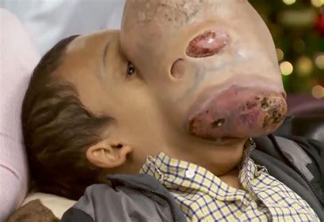 Cirujanos de EEUU extirparán a un niño cubano un tumor de ...
