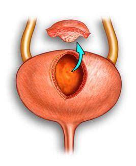 Cistectomía   ¿qué es esto