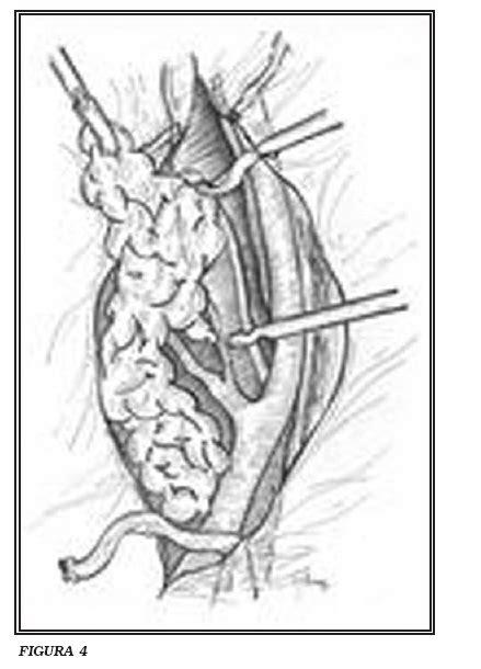 Cistectomía Radical Laparoscópica