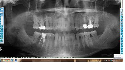 Cistectomia radicale mandibolare   YouTube