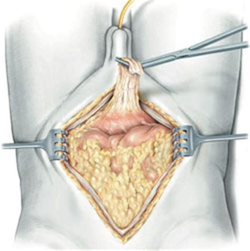 Cistectomia radicale