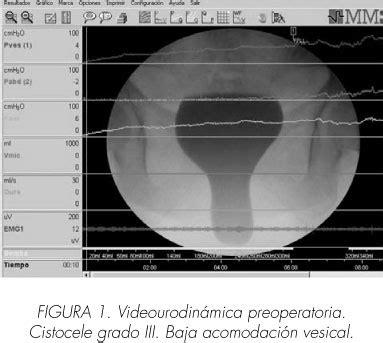 Cistoceles de alto riesgo urodinámico