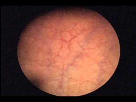 Cistoscopia + hidrodistension   cistitis intersticial ...