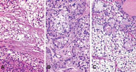 Clear cell carcinoma: Review of its histomorphogenesis and ...