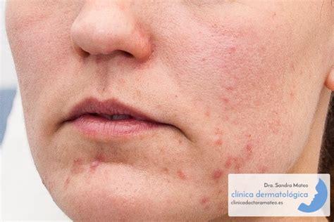 Clínica Dermatológica Dra. Sandra Mateo   Dermatitis ...