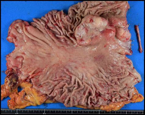 Clinical presentation and treatment of gastric metastasis ...
