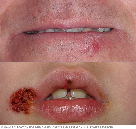 Cold sore Disease Reference Guide   Drugs.com