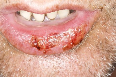 Cold sores on the lower lip   Stock Image C009/0137 ...