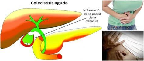 Colecistitis Aguda: Definición, Causas, Síntomas ...