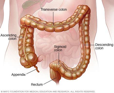 Colitis seudomembranosa   Síntomas y causas   Mayo Clinic