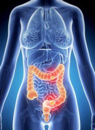 Cologuard: Non Invasive, At Home Colon Cancer Tests