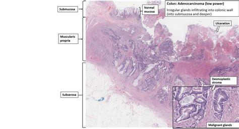 Colon   Adenocarcinoma   NUS Pathology