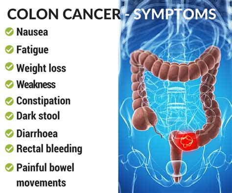 Colon Cancer   Causes, Diagnosis and Treatment