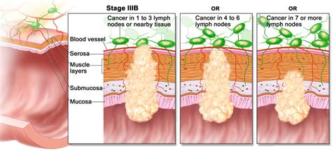 Colon Cancer Causes, Signs, Symptoms, Stages, Screening ...
