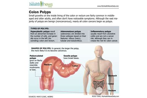 Colon Cancer: Causes, Symptoms and Treatments   Live Science