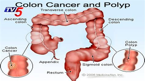 Colon Cancer: Causes, Symptoms, and Treatments | Omega ...