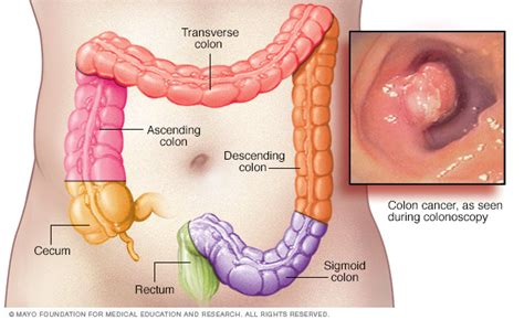 Colon cancer Disease Reference Guide   Drugs.com