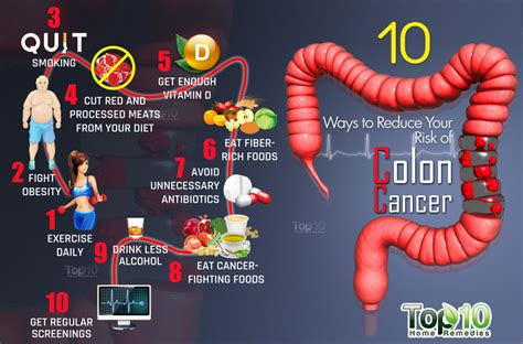 Colon Cancer: Myths & Facts | GetDoc