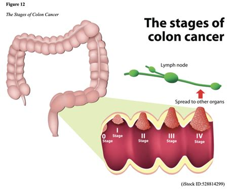 Colon Cancer: Prevention, Diagnosis, and Management for ...