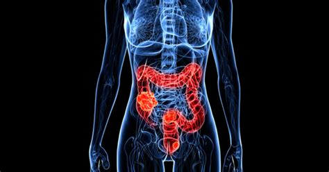 Colon cancer rising in people under 50   CBS News
