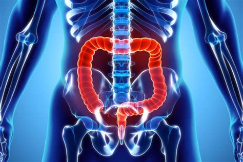 Colon Cancer – Types, Stages, Diagnosis, Treatment And ...