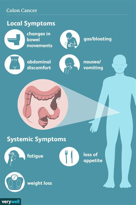 Colon Cancer: Signs, Symptoms, and Complications