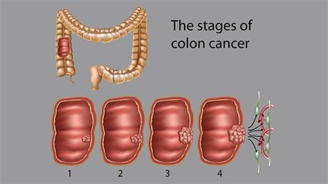 Colon Cancer Stages: What Do They Mean for Survival ...