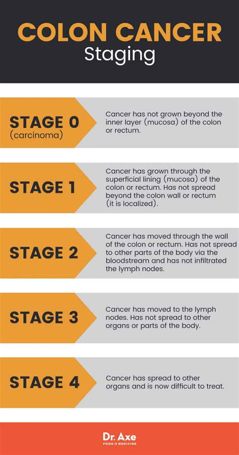 Colon Cancer Symptoms + 7 Natural Ways to Find Relief ...
