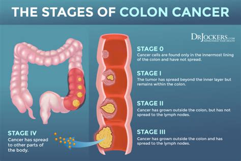 Colon Cancer: Symptoms, Causes and Support Strategies