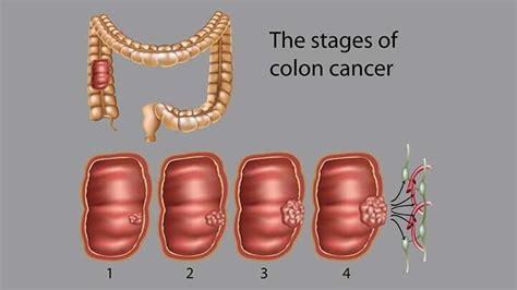 Colon cancer: Symptoms, Causes, Risk factors, and ...
