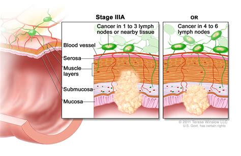 Colon Cancer Treatment  PDQ –Health Professional Version ...