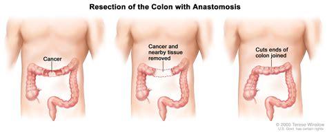 Colon Cancer Treatment  PDQ —Patient Version   National ...