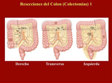 Colón y Recto – Dr. José J. Asilis Záiter, MD