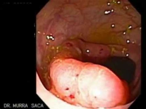 Colonoscopy with a Cancer of the Transverse Colon   YouTube