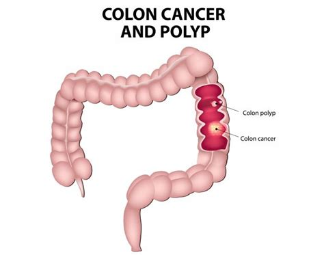 Colorectal Cancer: Causes, Symptoms and Treatments