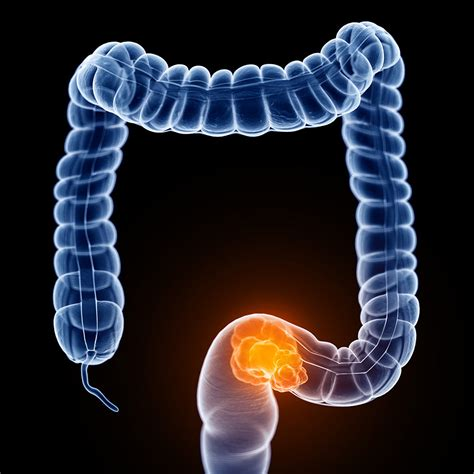 Colorectal cancer   Chasing the Cure