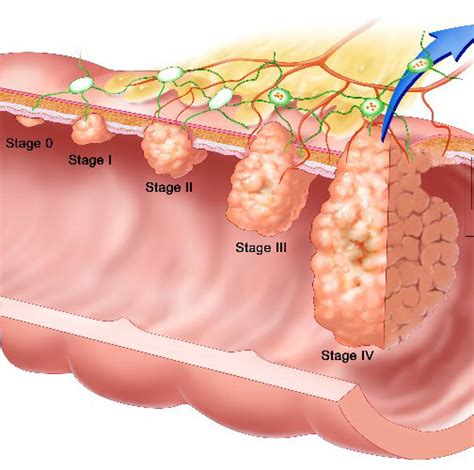 Colorectal Cancer | Health and Fitness