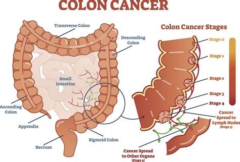 Colorectal cancer rates on the rise in younger people ...